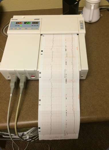Fetal Monitoring reading